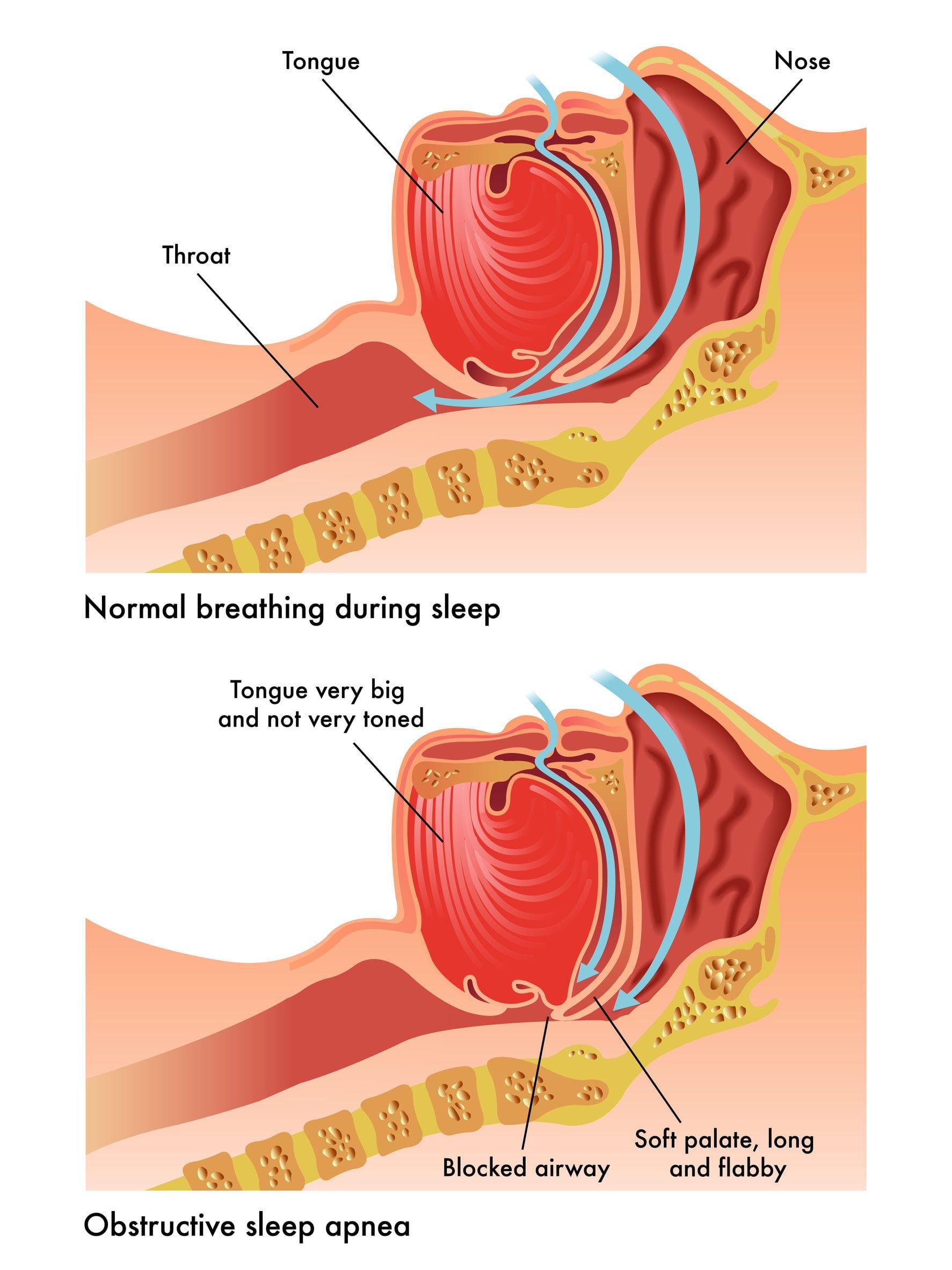 40700073 - obstructive sleep apnea - guerradental.com