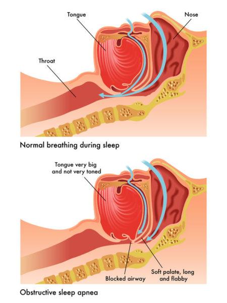 40700073 - obstructive sleep apnea